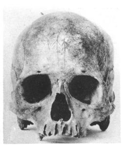 miru-skull-1