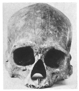 miru-skull-2